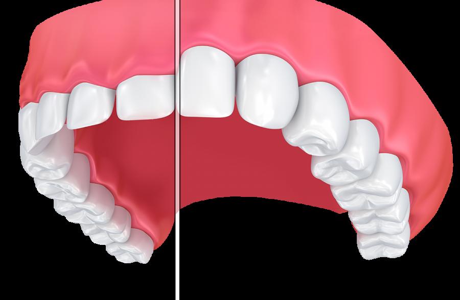phẫu thuật làm kéo dài thân răng uy tín không đau