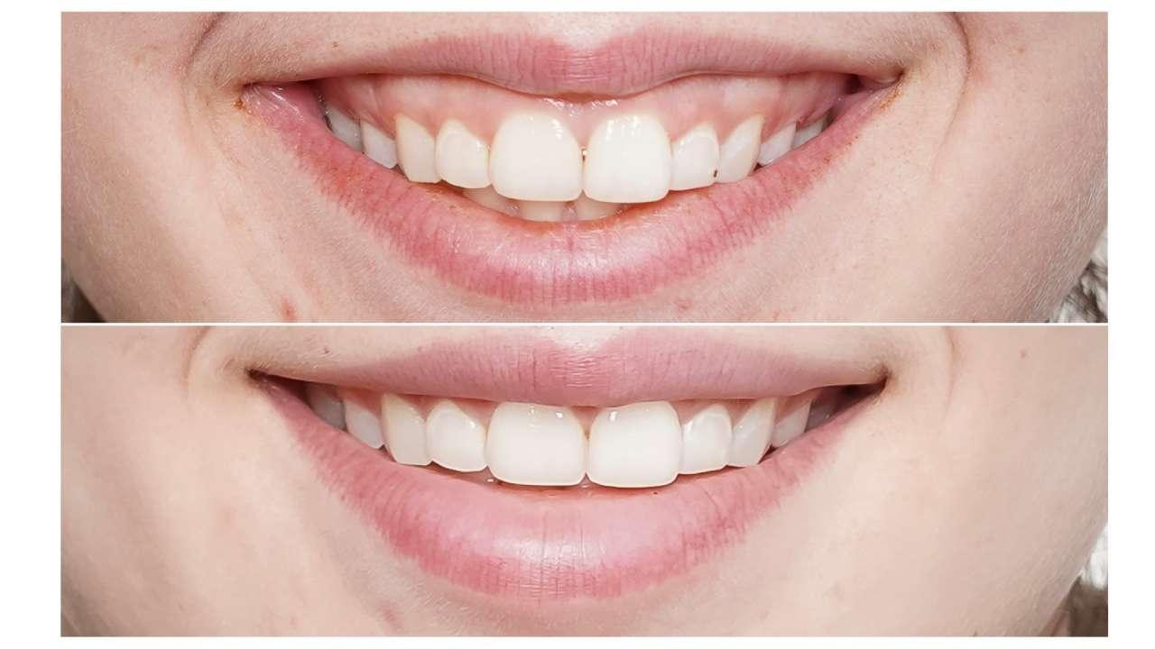 chữa điều trị cười hở lợi gummy smile