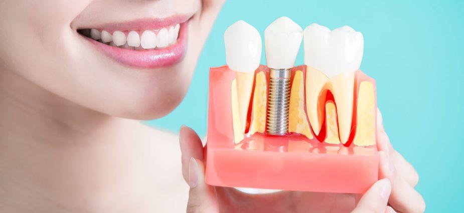cấy ghép trồng răng implant giá rẻ hà nội