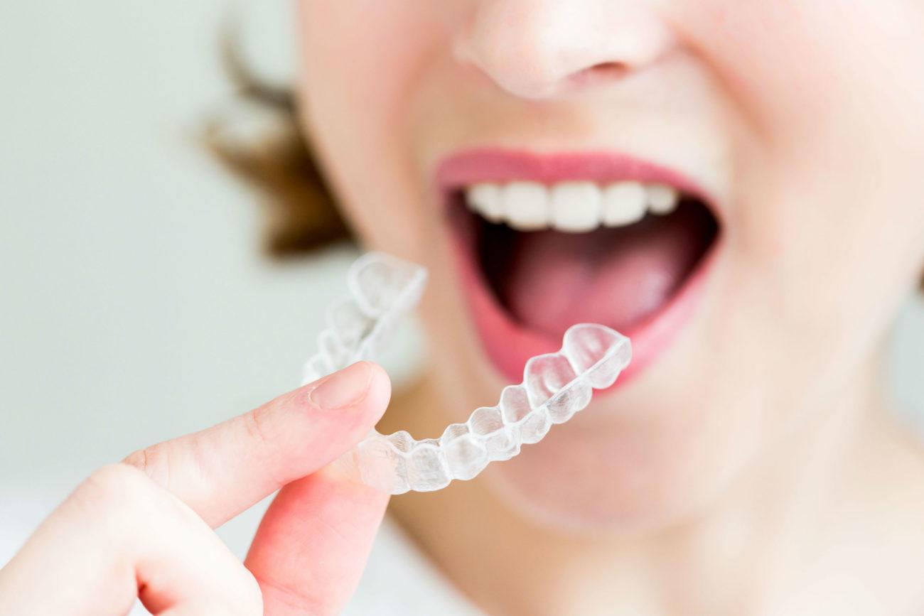 chỉnh nha niềng răng mắc cài trong suốt hà nội