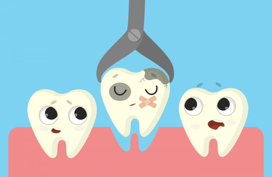 nhổ răng 8 khôn không đau hà nội