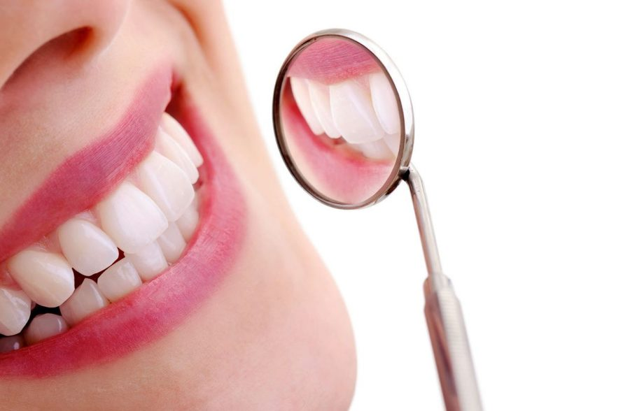 bọc răng sứ thẩm mỹ